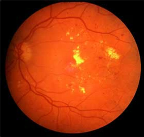 Fundus Camera Kessler Optics And Photonics Solutions